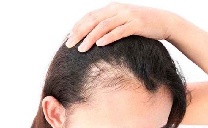 Giúp trị gàu và dưỡng tóc