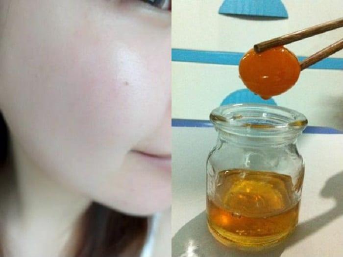 Lòng đỏ trứng gà ngâm mật ong giúp trị mụn, thâm nám hiệu quả.