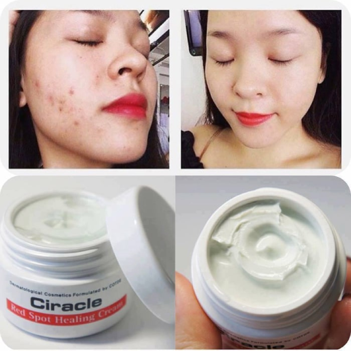 ciracle red spot cream30ml