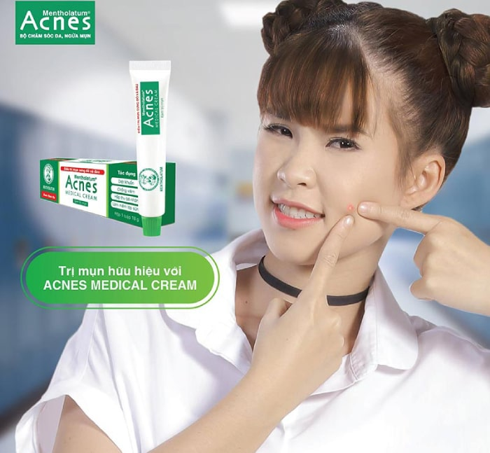 review kem trị mụn acnes