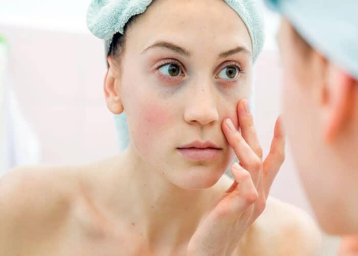 cách trị thâm quầng mắt nhanh và hiệu quả nhất